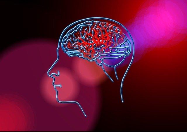 שבץ מוחי