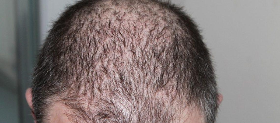השתלות שיער בטורקיה